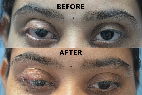 Eyebrows Restoration-image6