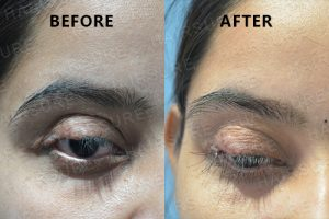 Eyebrows Restoration-image7