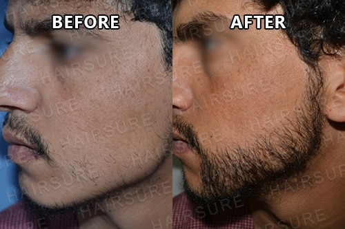 Mustache-before-afterimage10