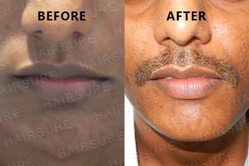 Mustache-before-afterimage12