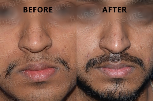 Mustache-before-afterimage13
