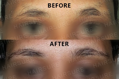 Eyebrows Restoration-image8