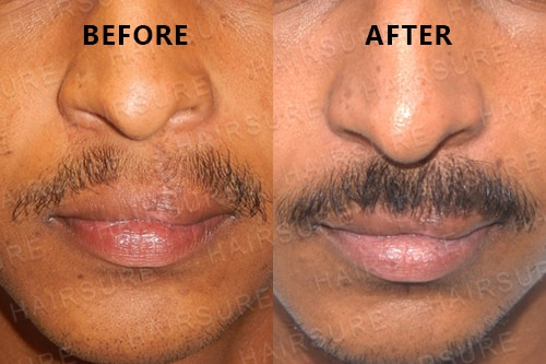Mustache-before-afterimage7