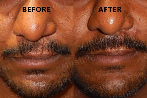 Mustache-before-afterimage8
