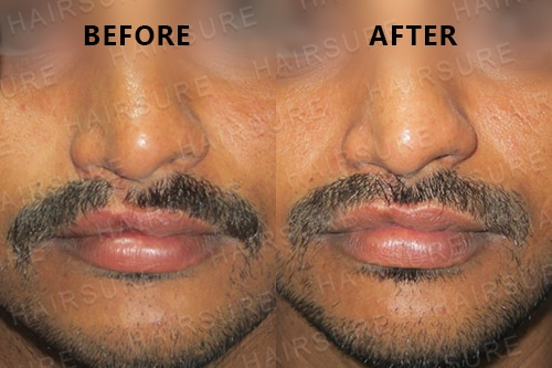 Mustache-before-afterimage9