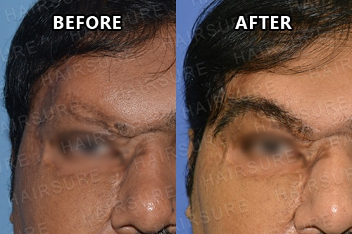 Eyebrows Restoration-image3