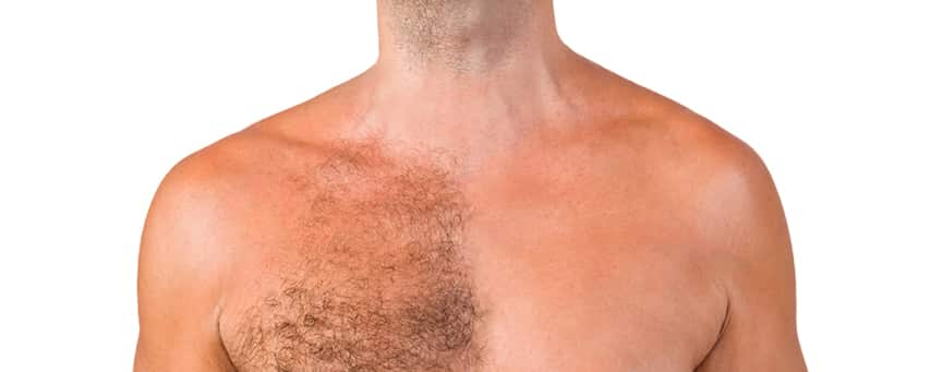 Body Hair Transplant in Hyderabad