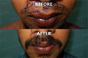 Mustache-before-afterimage3
