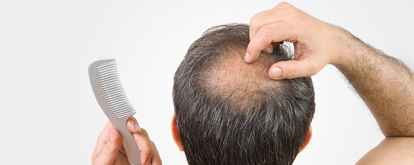 Contact with Dr Ravi Chander Rao to know the cost of hair transplant in Hyderabad, best doctor for hair restoration near me