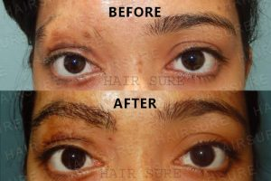 Eyebrows Restoration-image1