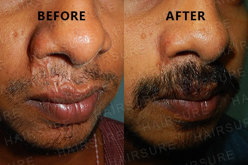 Mustache-before-afterimage4