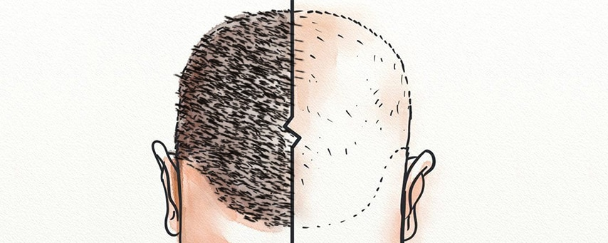 FUE Hair Transplant in Hyderabad