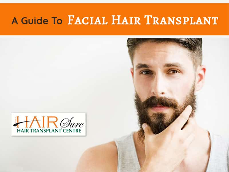 Beard Hair Transplant – An Overview