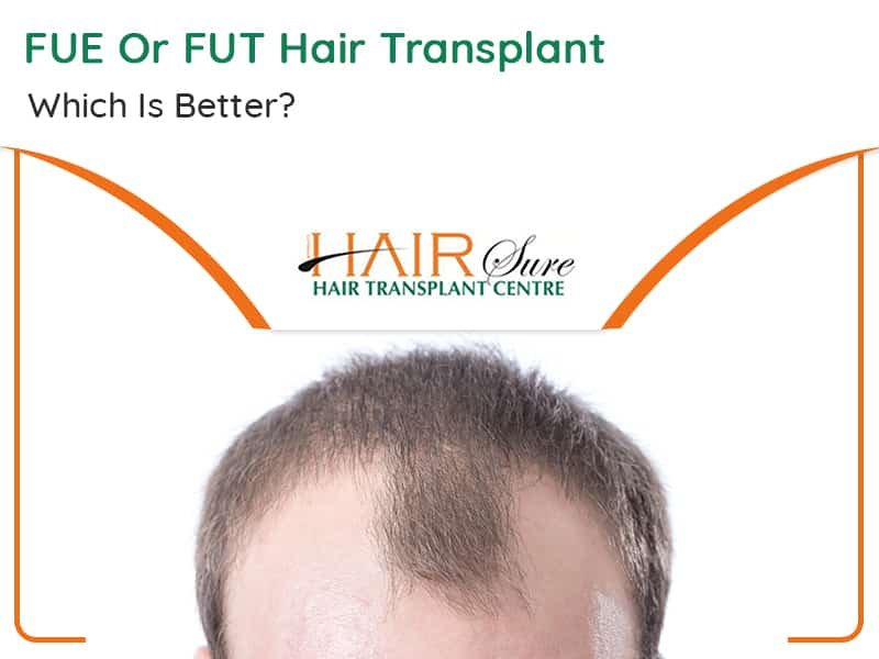 FUT Or FUE Hair Transplant – Which Is Better?