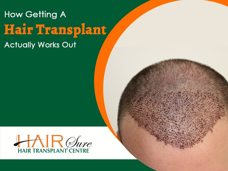 How Getting A Hair Transplant Actually Works