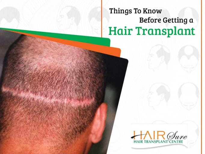 Things To Know Before Getting A Hair Transplant