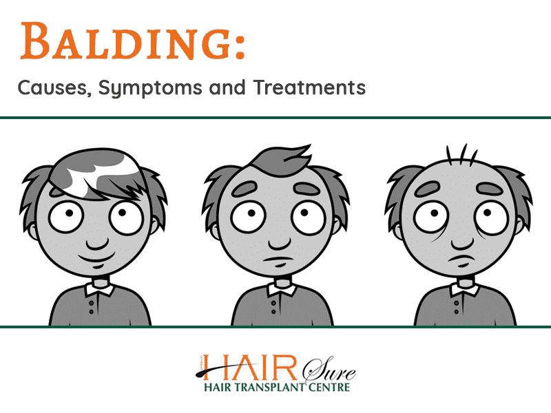 Balding: Causes, Symptoms and Treatments