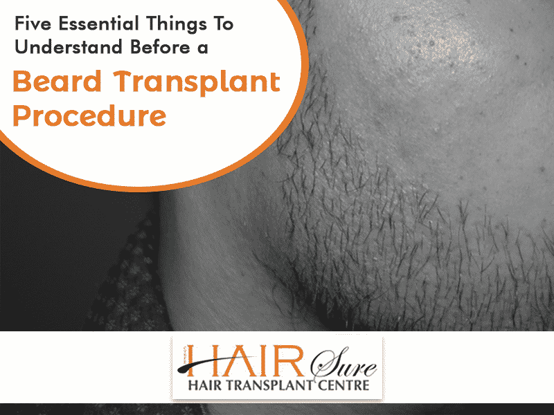 Five Essentials Things To Know Before A Beard Transplant Procedure