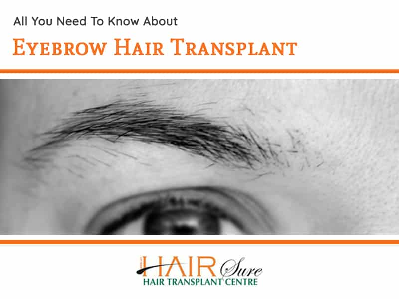All You Need To Know About Eyebrow Hair Transplant