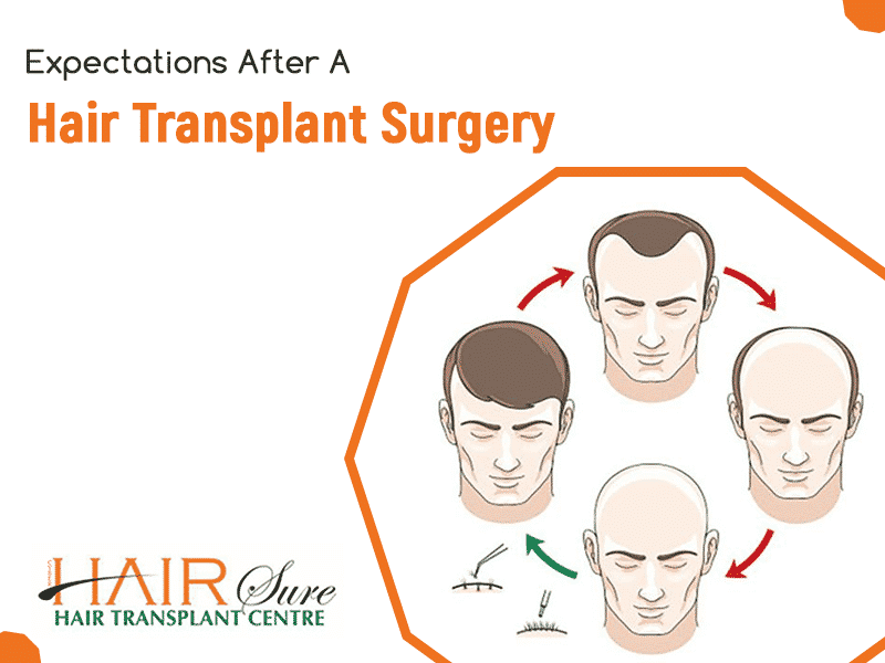 Expectations After A Hair Transplant Surgery