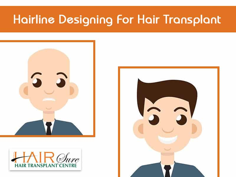 Hairline Designing For Hair Transplant