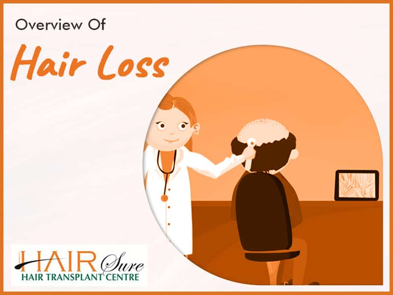 Overview Of Hair Loss