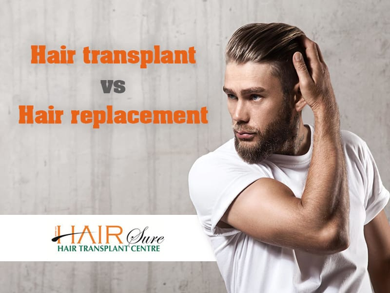 Hair Transplant vs Hair Replacement