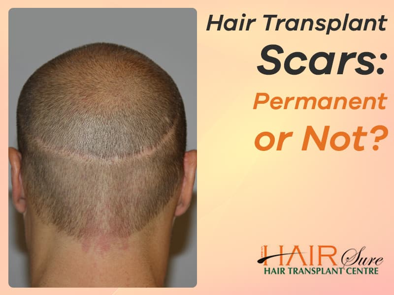 Hair Transplant Scars: Permanent Or Not?