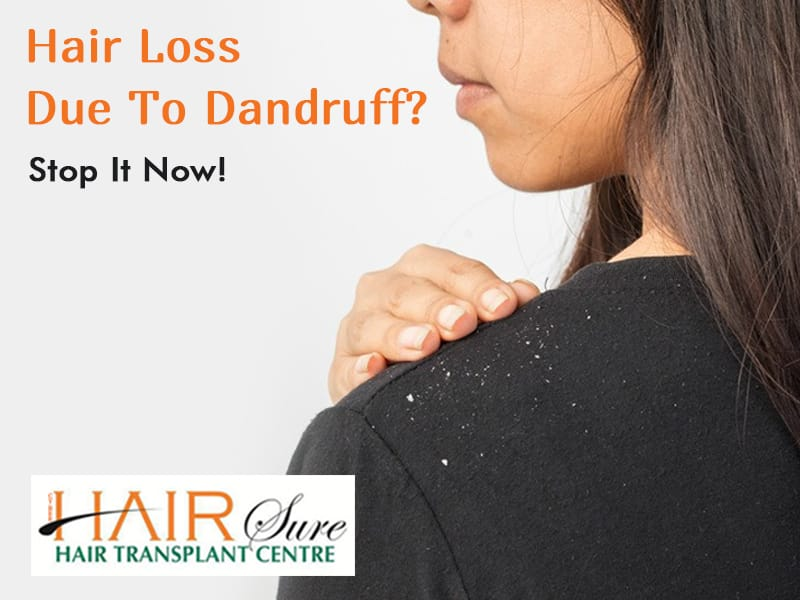 Hair Loss Due To Dandruff? Stop It Now!