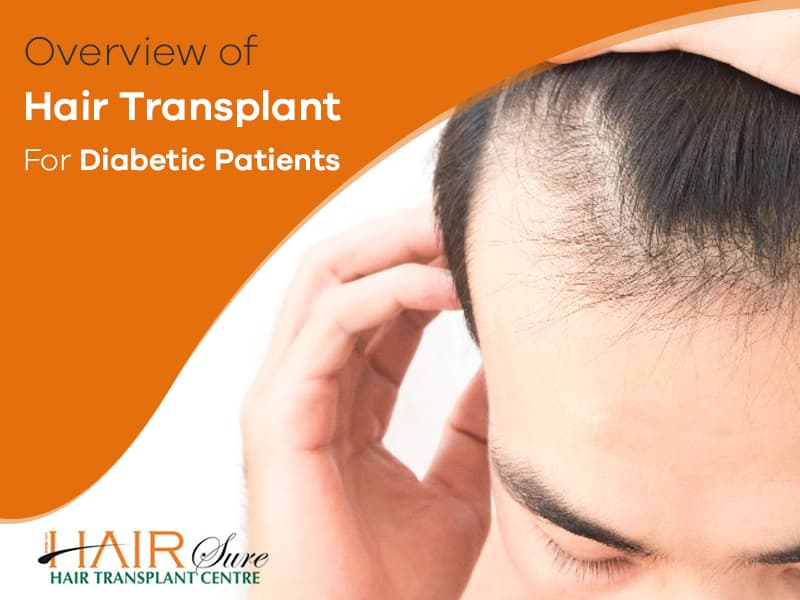 Diabetic? You Can Still Go For A Hair Transplant