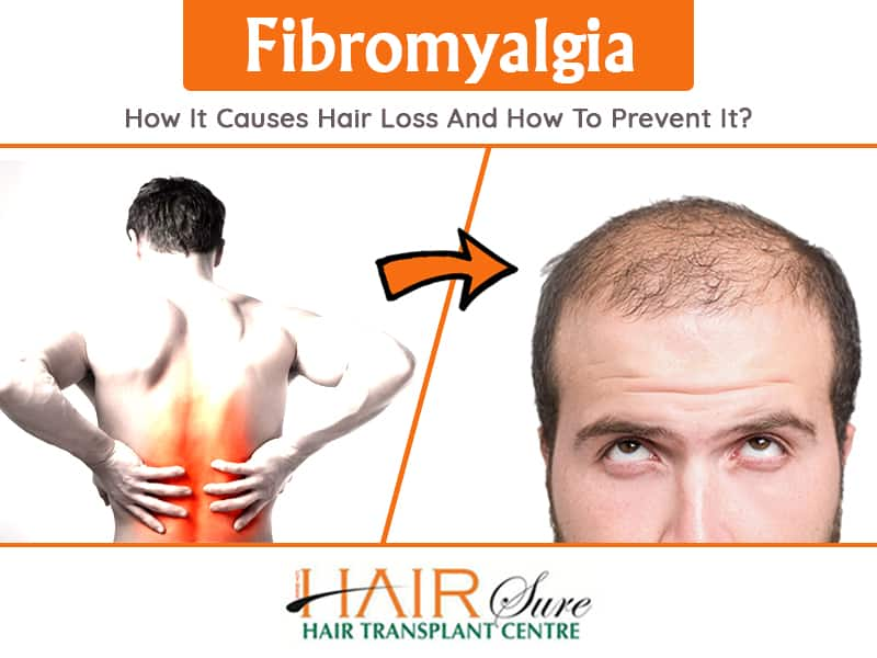 Fibromyalgia How It Causes Hair Loss And How To Prevent It?