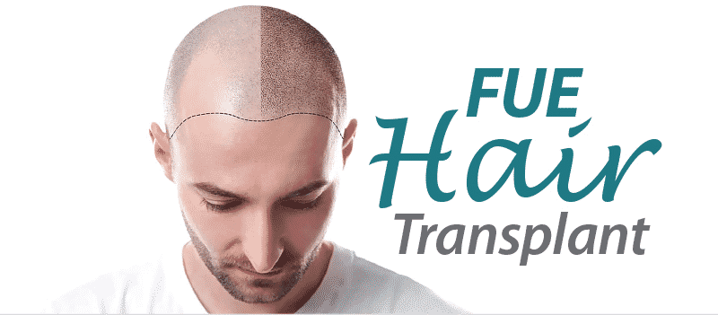 FUE Hair Transplant: Treatment, Procedure, Cost, Recovery, Results