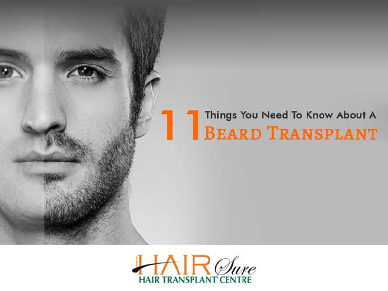 11 Things You Need To Know About A Beard Transplant
