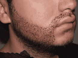 Everything To Know About Beard Transplant Cost