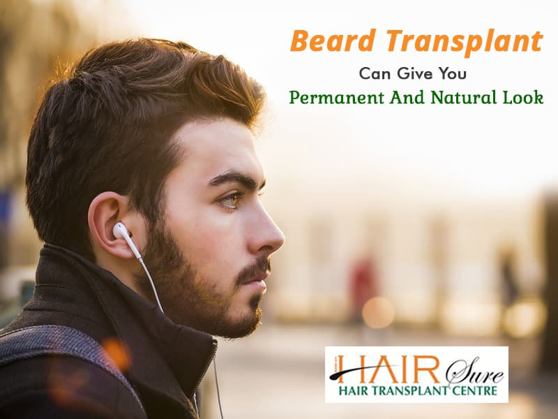 Beard Transplant Can Give You Permanent And Natural Look