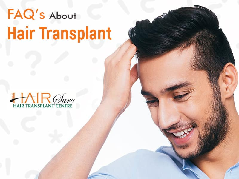 FAQ's About Hair Transplant
