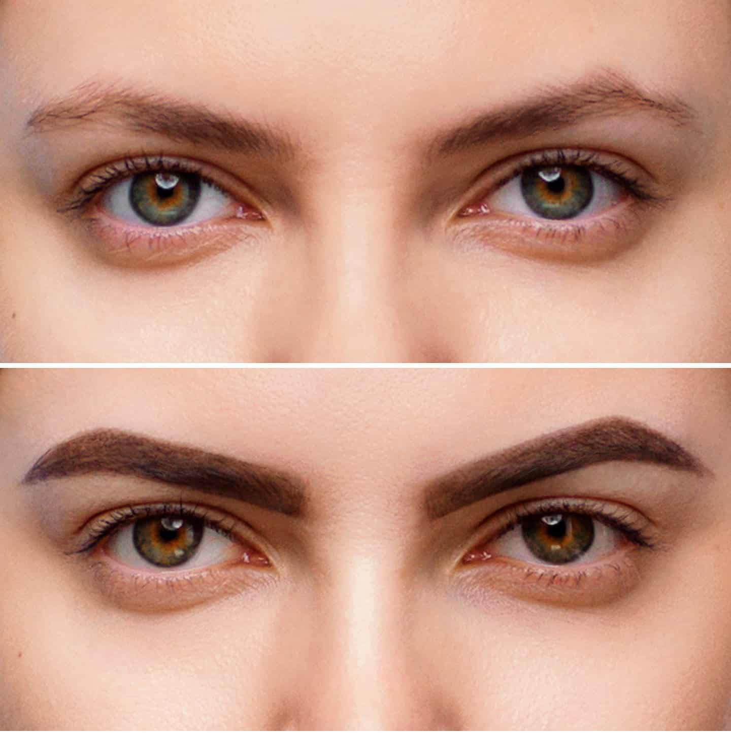 Want Perfectly Shaped eyebrows? Laser Hair Treatment At Our Clinic Can Help You!