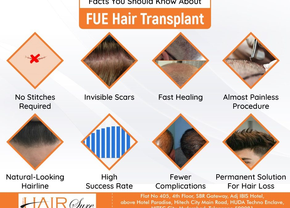 Facts You Should Know About FUE Hair Transplant