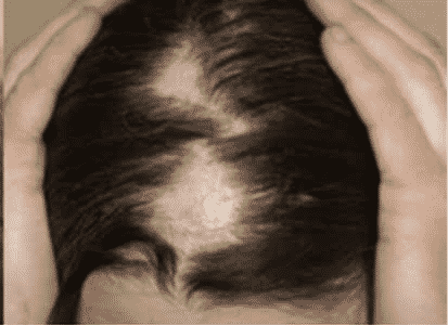 FUE Hair Transplant: Is It Safe For Men