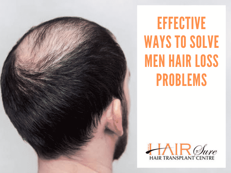 Effective Ways To Solve Men Hair Loss Problems