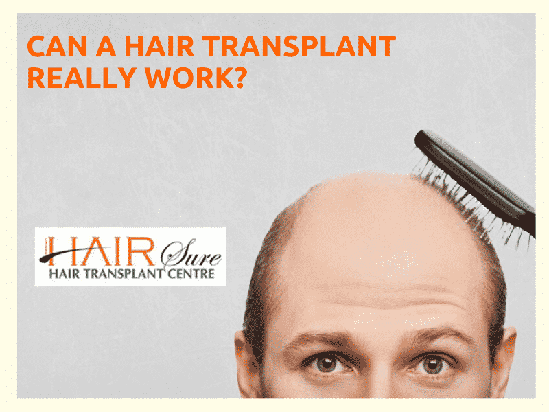 Does Hair Transplant Work?