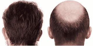 How Long Does It Take For The FUE Hair Transplant Procedure?