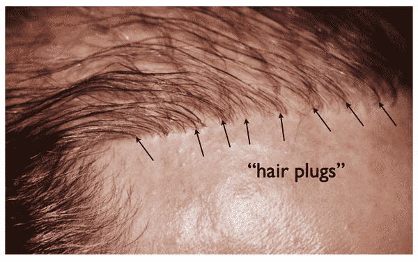 Hair Transplant Looks Natural Or Not?
