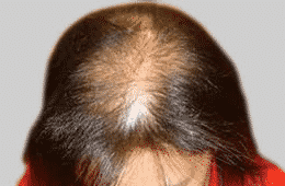 Is Female Pattern Hair Loss Reversible?