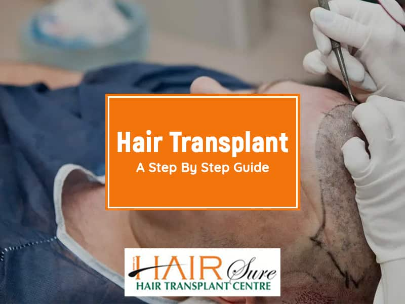 Hair Transplant: A Step By Step Guide