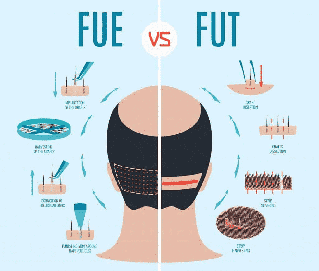 Is Hair Transplant A Permanent Solution?