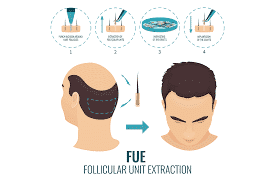 Does FUE Leave A Scar?