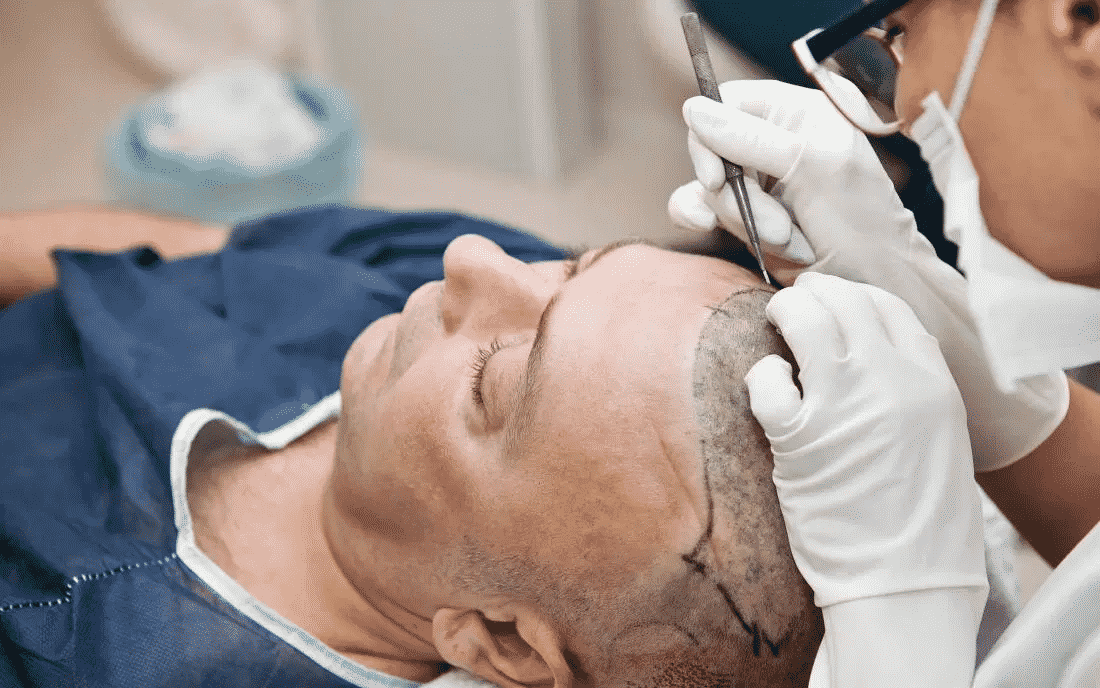 How Much Is Pain Involved In Hair Transplant Procedure?