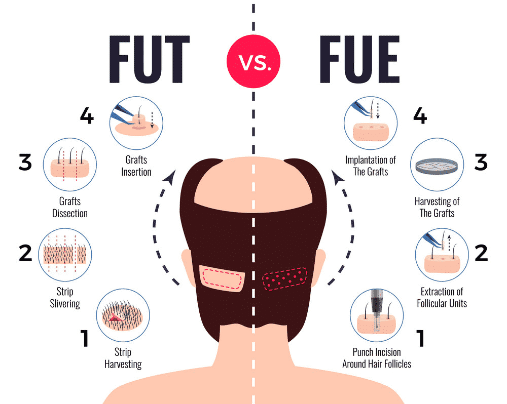 What Is FUE And How It Varies From The Strip Method?