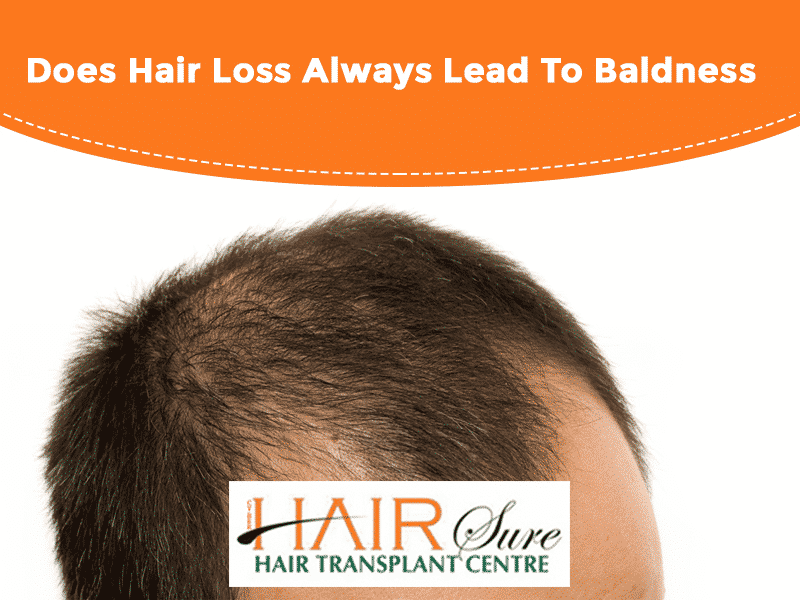 Does Hair Loss Always Lead To Baldness?